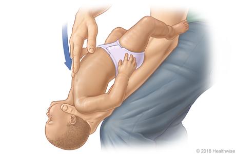 Imagen D: Posición del bebé sobre el muslo para la maniobra de Heimlich; se muestran la posición y la dirección de las compresiones en el pecho